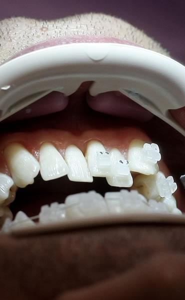 ordonontie personalizata bucuresti clinica dentica - Aparate dentare
