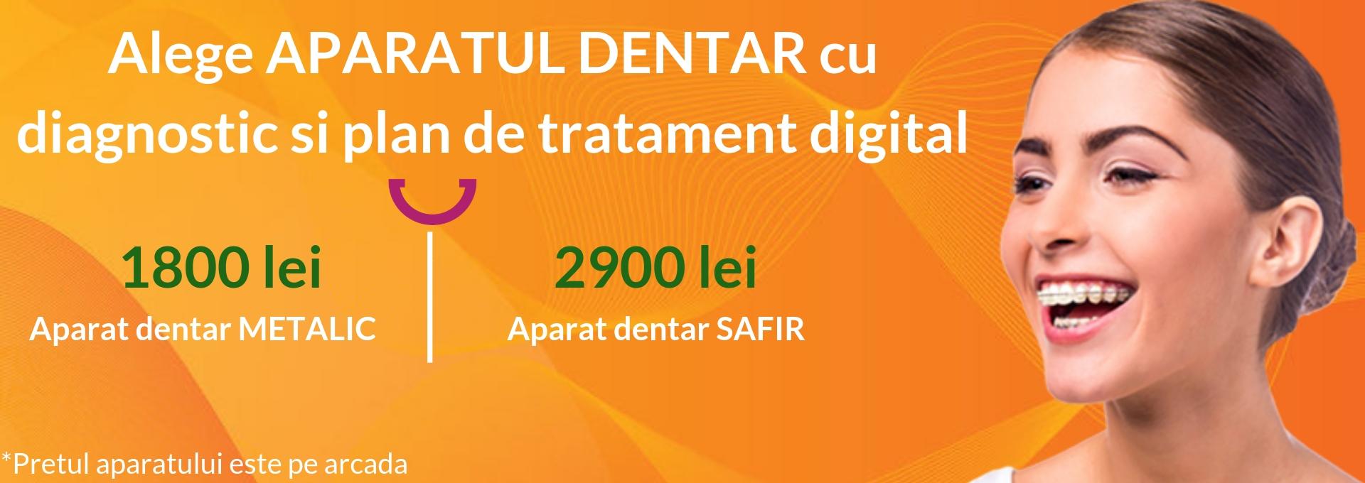 aparate corect - Aparate dentare
